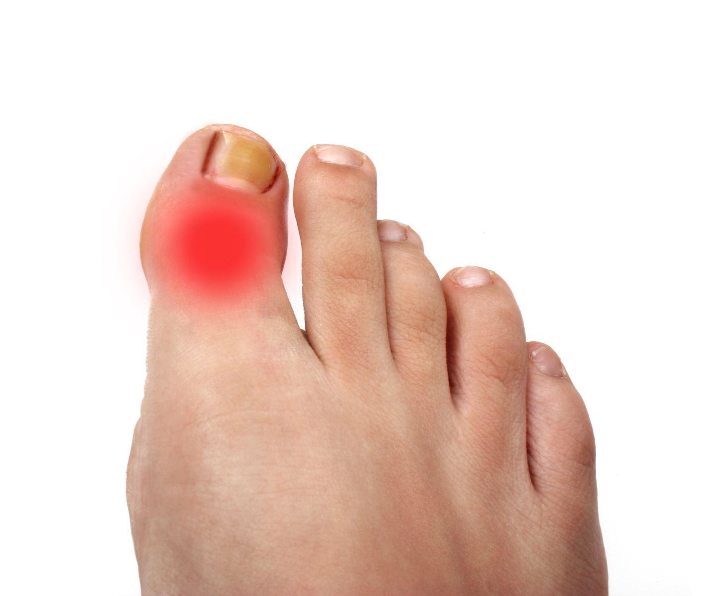 Заболел сустав пальца на ноге