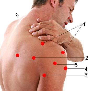 Симптомы плечелопаточного периартрита и лечение заболевания в ...