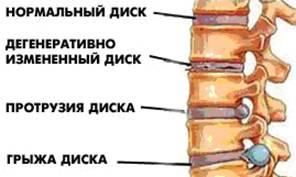 Мускулатура шейного отдела