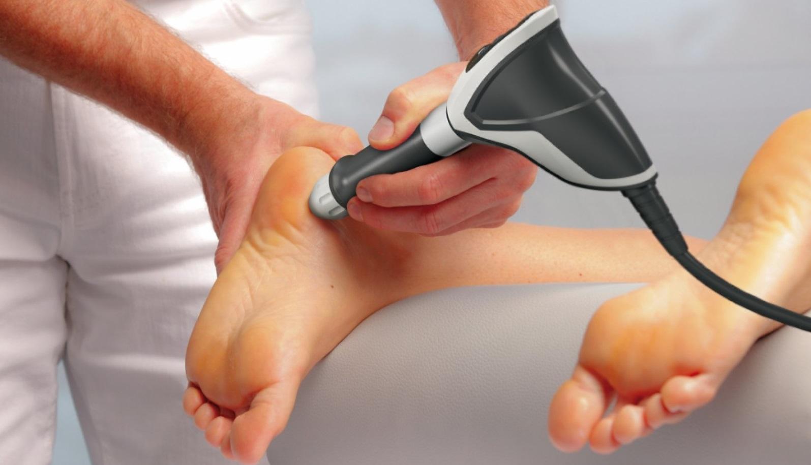 Как лечить шпоры на пятках в домашних условиях Азбука здоровья