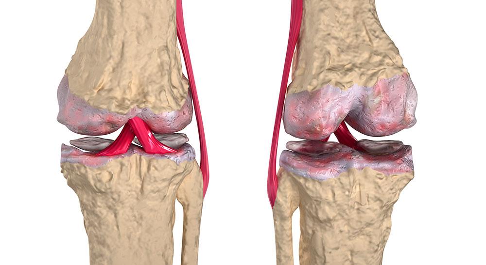 артроз коленных суставов видео