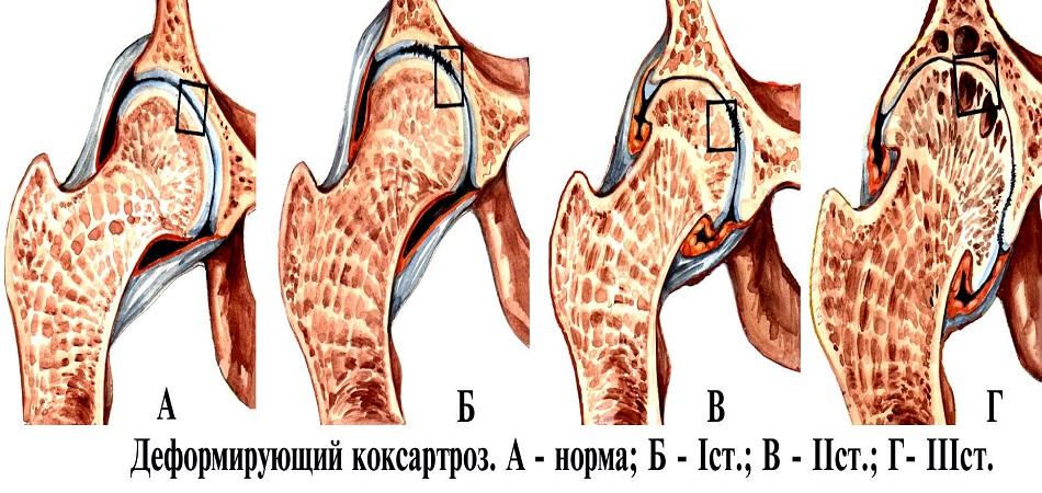 организации: артроз тазобедренного сустава 1 степени Женщина приходит