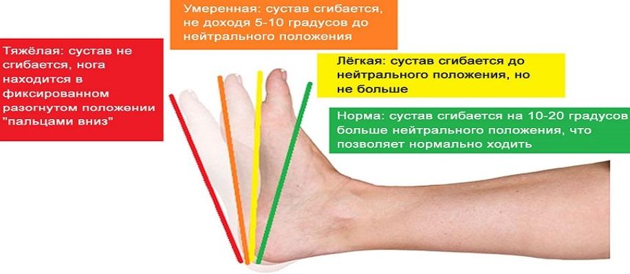 Контрактура голеностопного сустава: лечение в клинике Stopartroz ...