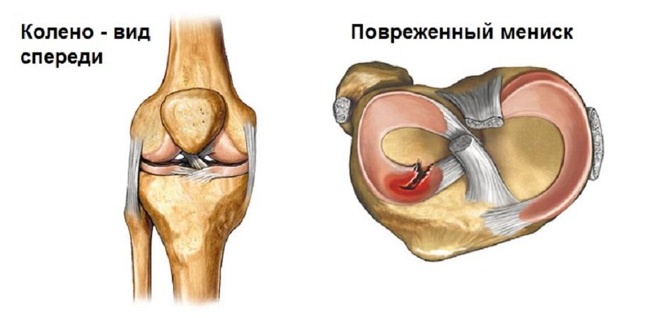 лечение мениска коленного сустава в новосибирске