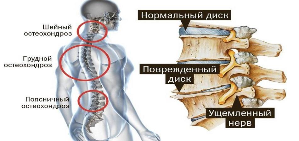 Шейный радикулит симптомы и лечение Ваш ортопед