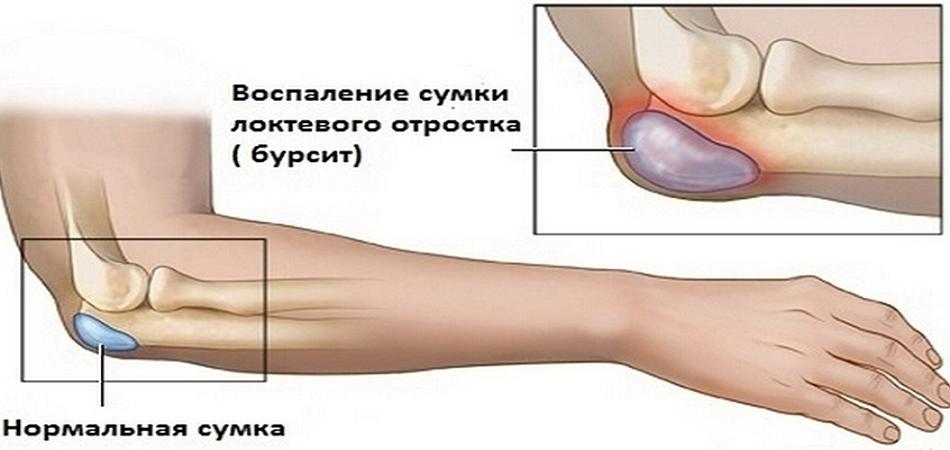 Бурсит колена лечение в домашних