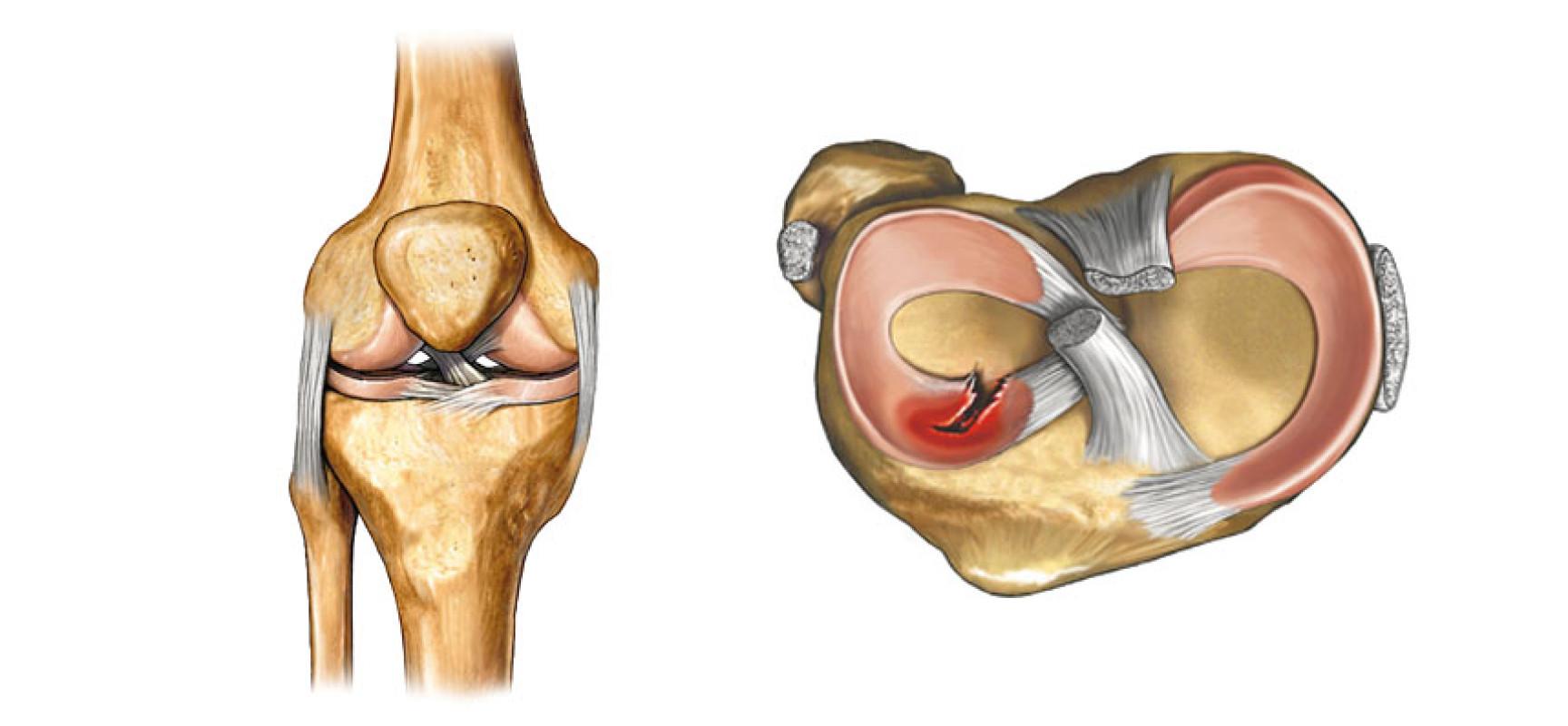 травмы тазобедренных суставов в бодибилдинге