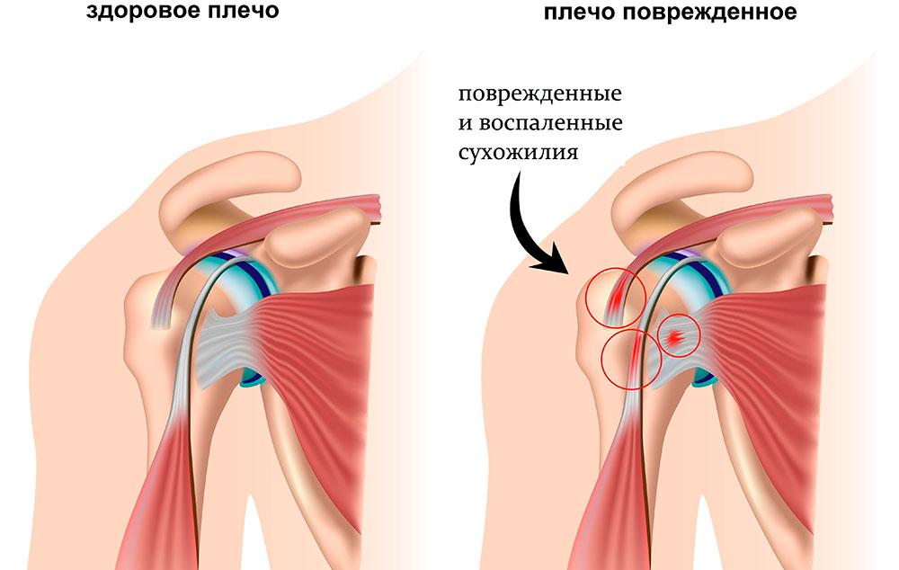 воспаление плечевого сустава лечение народным методом