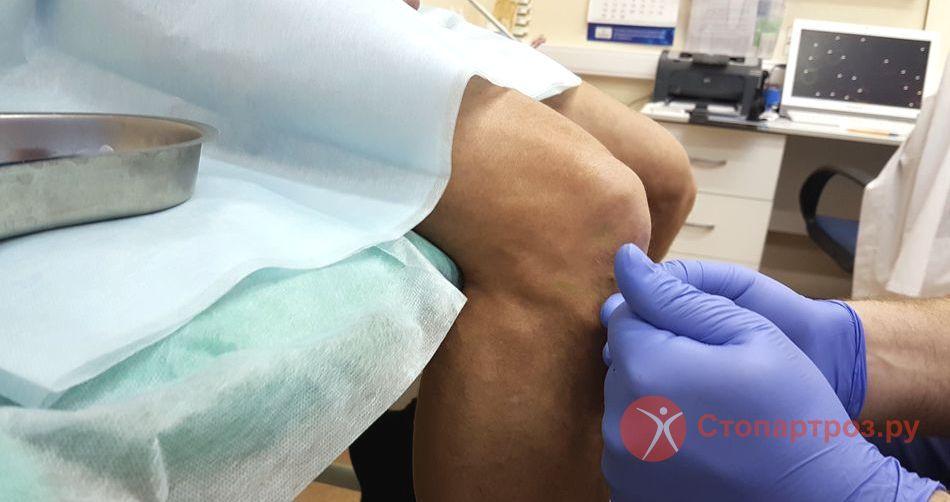 Болит и колет колено