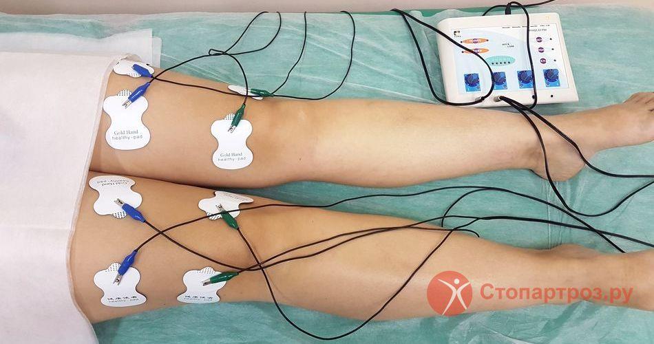 Травма четырехглавой мышцы бедра - симптомы и лечение