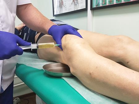 Плазмолифтинг при гонартрозе колена prp терапия с уколами плазмы в сустав