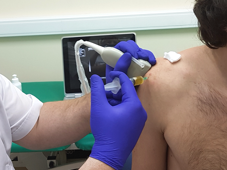 Пункция в плечевом суставе