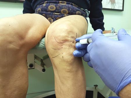 Внутрисуставное моделирование хряща коленного сустава где сделать