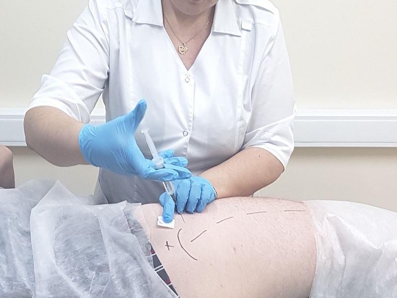 Блокада уколы в тазобедренный сустав при коксартрозе как лечить колено барсучьим жиром
