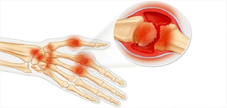 Остеопороз лечение биофосфаты