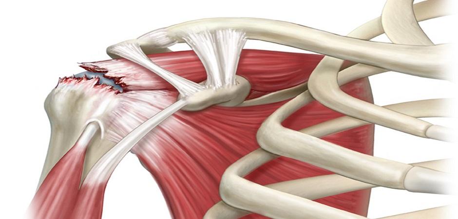 Повреждения мышц картинки