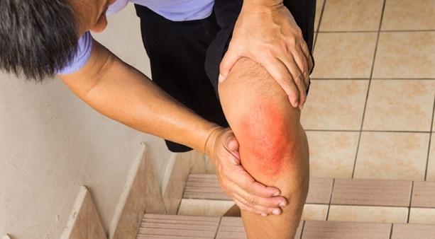 Хрустит колено при подъеме по лестнице