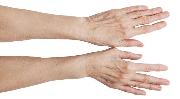 Похудение Рука Кисть. Что делать, чтобы похудели кисти и пальцы рук?