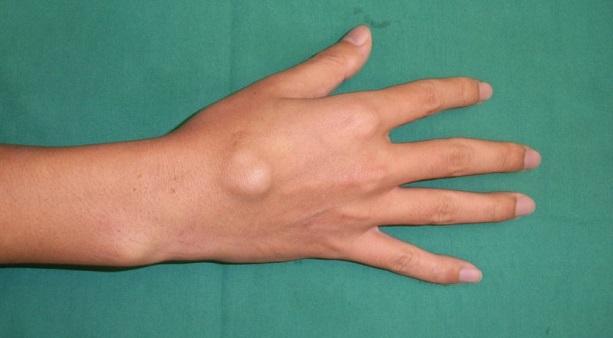 Полиартрит пальцев рук симптомы лечение
