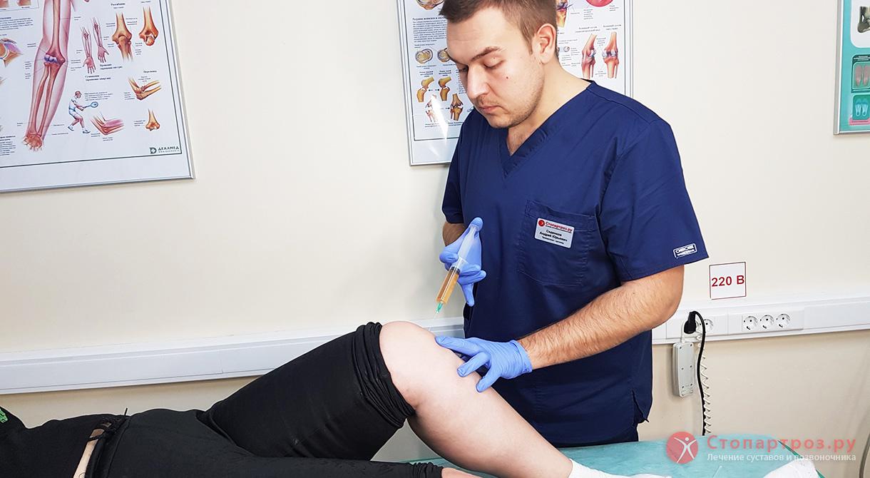 Артроз коленного сустав какие мази