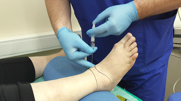 Какие уколы в голеностопный сустав укрепление суставов и связок таблетки