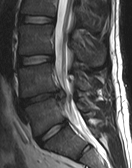 L4-l5-disc-herniation.png