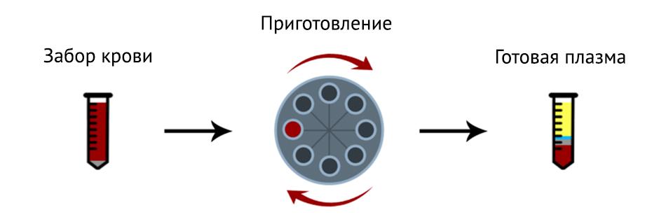 PRP терапия коленного сустава в Москве